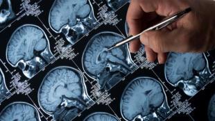 L'épilepsie concerne près de 50 millions de personnes dans le monde.