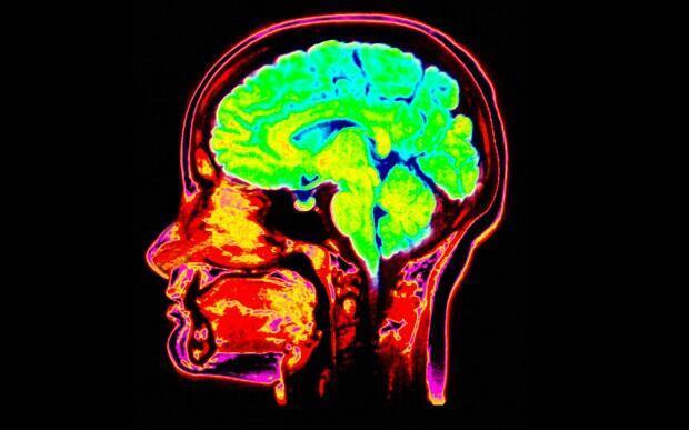 مصرف مواد مخدر موجب تغییر شکل مغز انسان می شود