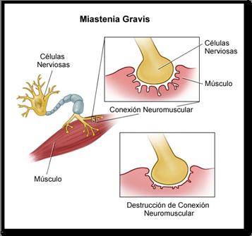La miastenia gravis es una enfermedad que afecta la unión neuromusuclar.