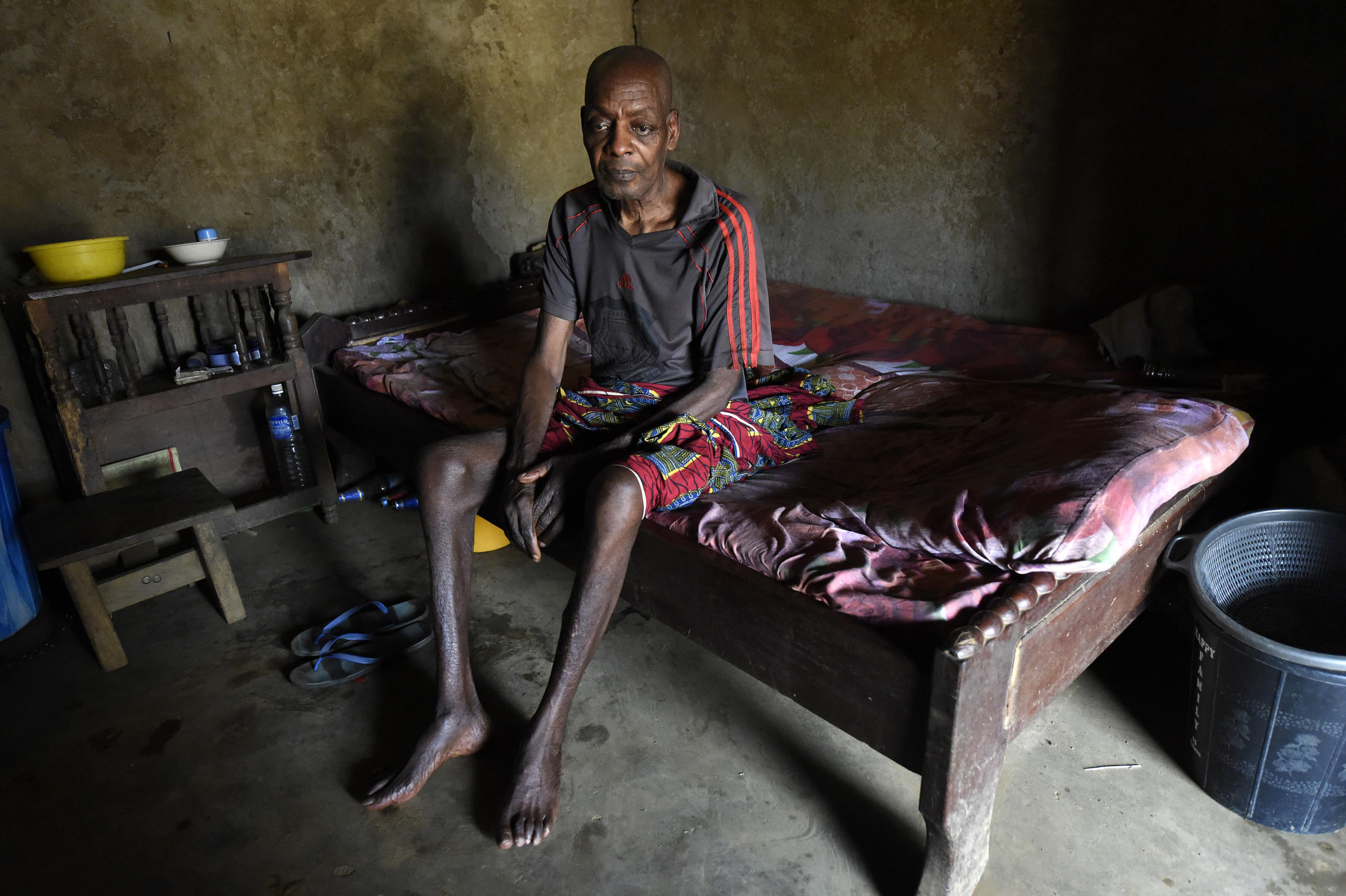 Cameroonian refugee Ben Ojometa, 75, recuperates from injuries sustained fleeing from Cameroonian military in Agborkim town, Etung district of Cross Rivers State, southeast Nigeria, on 2 February 2018.