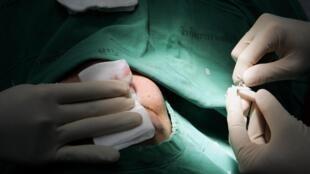 Một ca phẫu thuật mũi cho bệnh nhân nước ngoài tại bệnh viện đa khoa Yanhee, nổi tiếng về phẫu thuật chuyển giới tại Bangkok, ngày 21/11/2005.