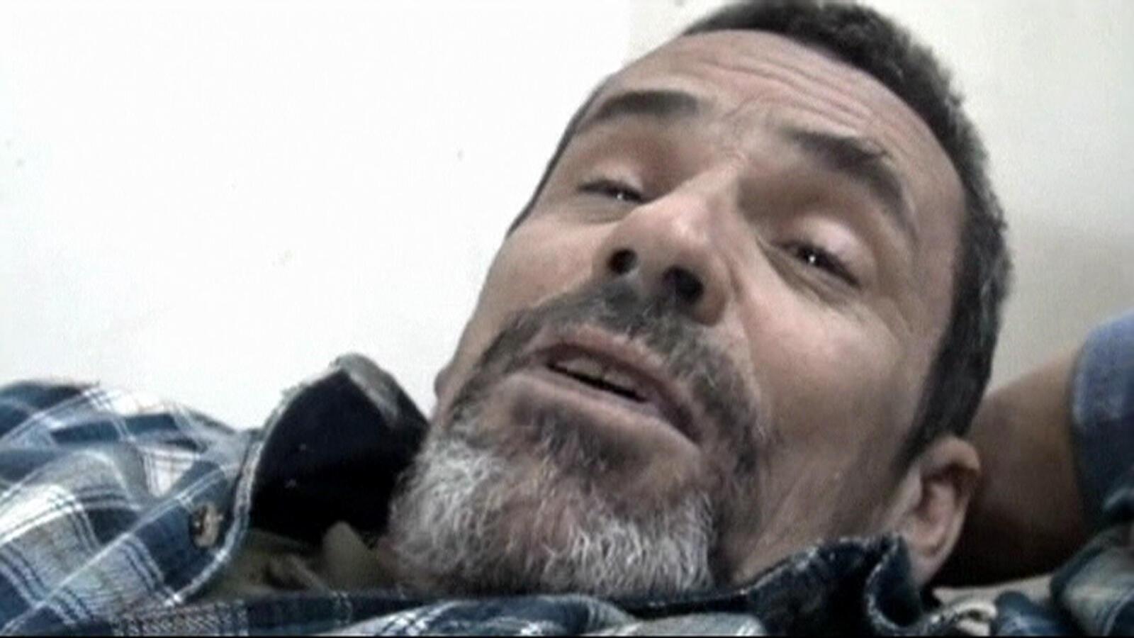 Paul Conroy, fotógrafo inglês ferido em foto do dia 22 de fevereiro, em Homs.