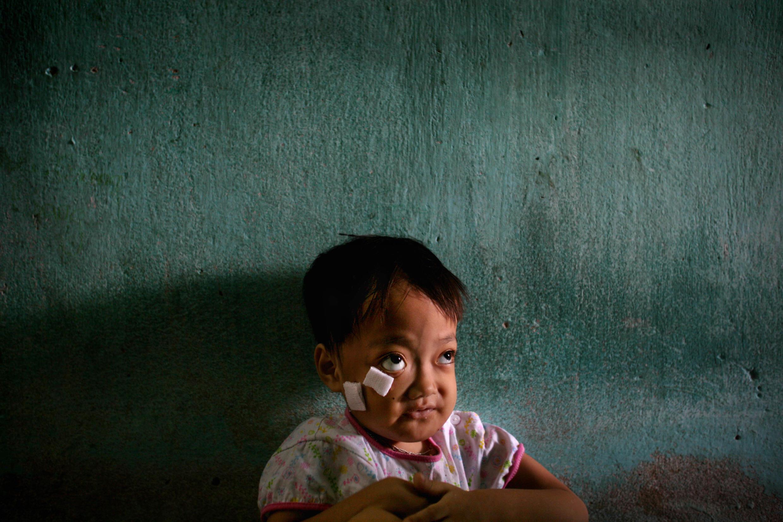 Nguyen Thi Kieu Nhung sentada en el interior de su casa familiar junto a la base aérea de Danang, Vietnam, en esta foto de archivo del 21 de mayo de 2007. La niña nació con deformidades físicas que los funcionarios sanitarios locales sospechan que fueron causadas por la dioxina del defoliante químico Agente Naranja.