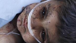کودکان  قربانیان اصلی جنگ افغانستان هستند