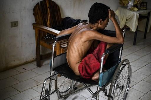Un hombre de 26 años, que sufre de una enfermedad congétina y de malnutrición severa, permanece en su casa del barrio de Altos de Milagro Norte en Maracaibo, Venezuela.