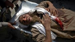 Medics assist a man injured by a suicide bomb attack at a funeral procession on the outskirts of Peshawar