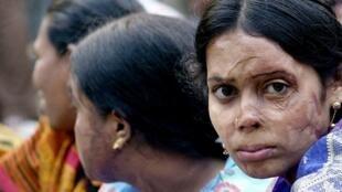 Une femme dont le visage a été brûlé au vitriol, un acide puissant.