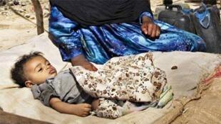 De nombreux enfants continuent de souffrir de malnutrition aiguë ou chronique au Yémen.