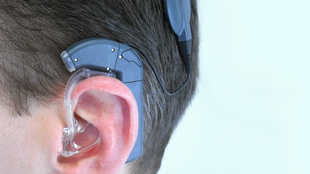 Audio Processor with earmould for Electric Acoustic Stimulation