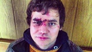 Режиссер lenta.ru Андрей Киселев были избит во время задержания