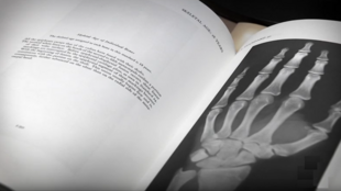 The hand X-ray test is criticised as an outdated method of verifying age.
