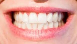 La santé des dents.