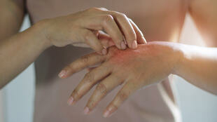 D'origine allergique ou chronique, l'eczéma peut provoquer de fortes démangeaisons.