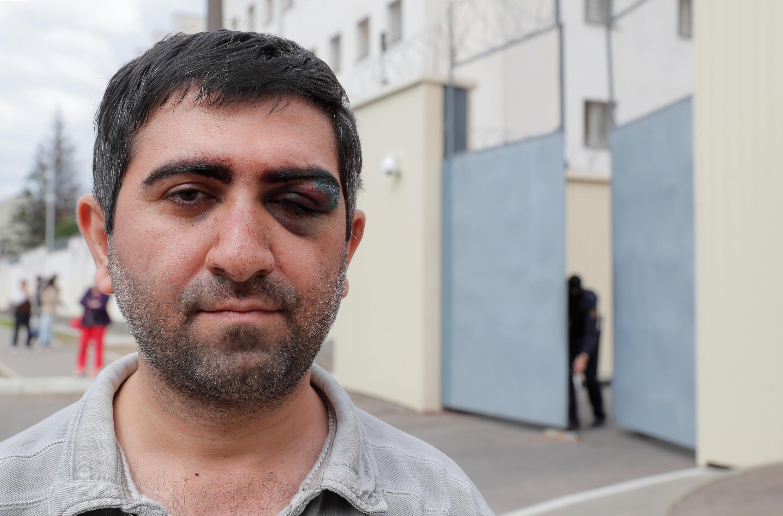 Гражданин Армении Вартан Григорян отпущен из минского изолятора ЦИП 13 августа со следами побоев. Агентству Reuters он сообщил, что не принимал участие в протестах, а в ЦИП пришел в поисках конфискованных у него документов
