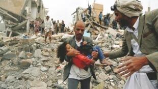 کودکان قربانیان اصلی جنگ یمن هستند