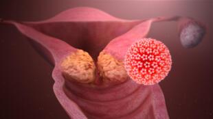Le papillomavirus est l'une des raisons les plus communes pour contracter un cancer du col de l'utérus.