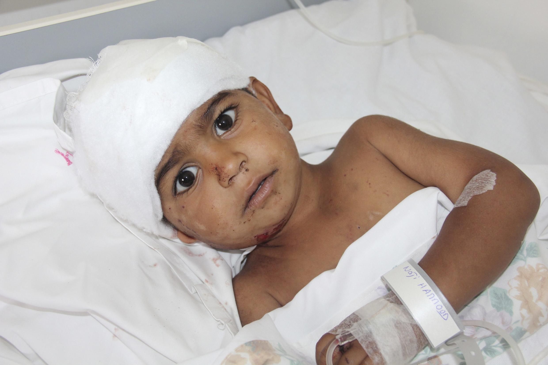 Criança libanesa ficou ferida por ataque sírio, neste sábado.