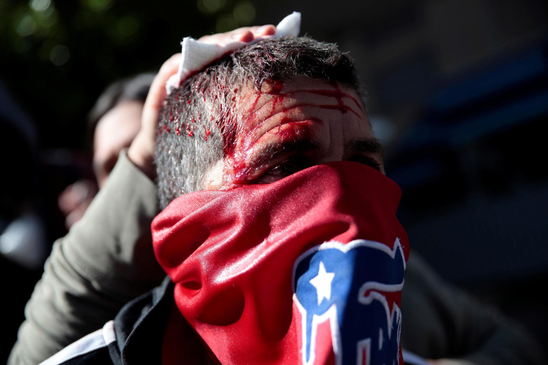 Manifestante recebe atendimento médico após ser ferido em protesto em Conception. (24/10/2019)