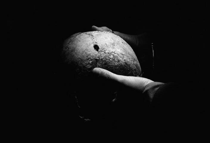 Cráneo con orificio de bala, morgue judicial, La Plata.