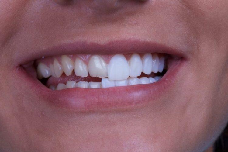 برای شنیدن توضیحات دکتر رامتین تقوی لاریجانی، دندانپزشک و متخصص ایمپلنتولوژی در پاریس و دبیرکل انجمن پزشکان، دندانپزشکان و داروسازان در فرانسه، بر روی تصویر کلیک کنید.