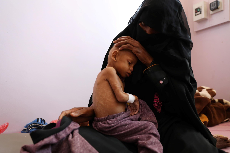 yémen enfants famine