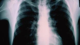 La tuberculose est une infection touchant les poumons. Elle est transmise par voie aérienne et peut se propager au cerveau.