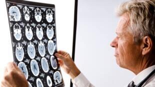 Imágenes del cerebro por resonancia magnética.
