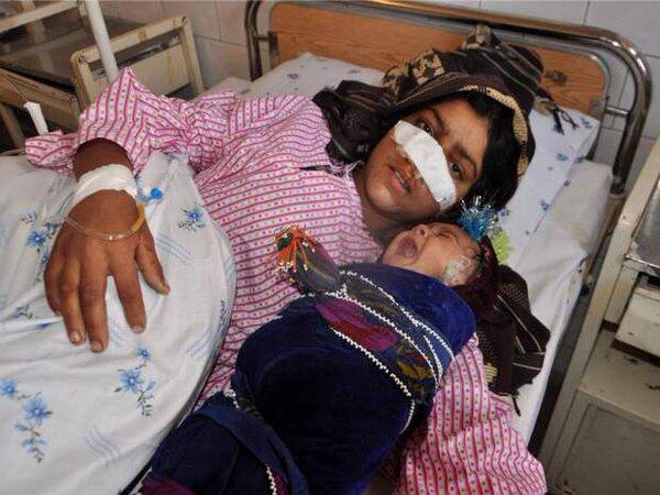 """""""ریزهگل"""" زن جوان ۲۹ ساله افغان که همسرش پس از یک مشاجره، بینی او را برید"""