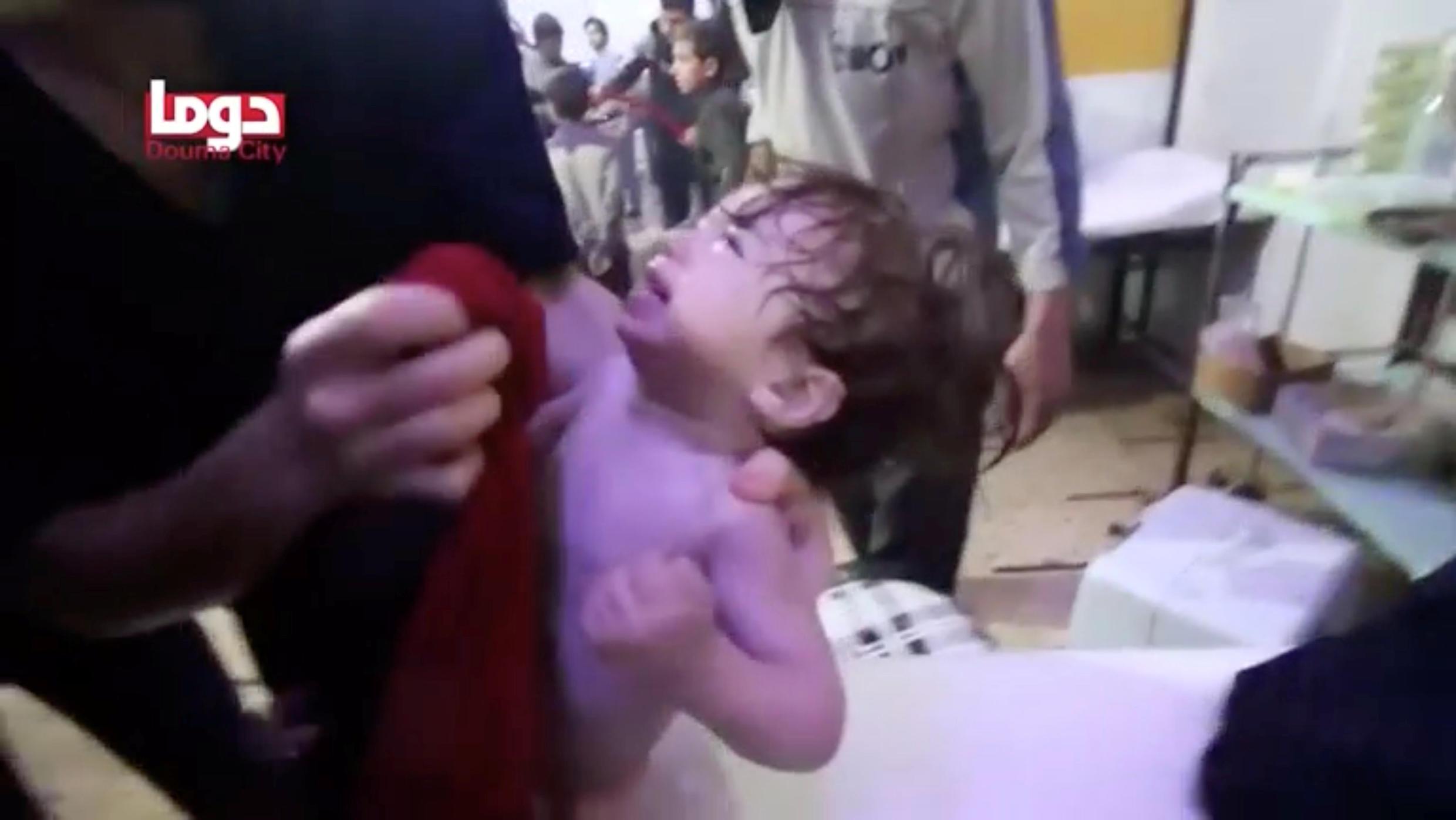 Tại một bệnh viện ở Douma, Đông Ghouta, Syria, ngày 07/04/2018, sau vụ được cho là tấn công hóa học.