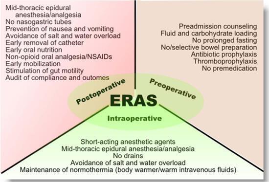 """Los principios básicos de la cirugía """"ERAS"""" por sus siglás en inglés 'Enhanced Recovery after surgery"""", antes, durante y después de la operación."""