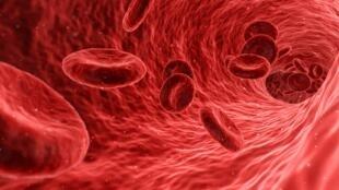 Affectant l'hémoglobine des globules rouges, la drépanocytose est la maladie génétique la plus fréquente au monde.
