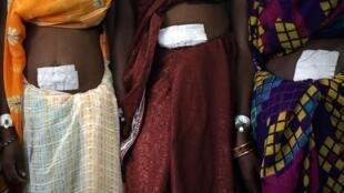 Des femmes, après leur opération dans un camp public de stérilisation.