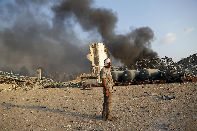 یکی از ساکنان بیروت پس از انفجارهای چهارم ژوئیه.