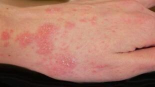 Mão infectada por sarna