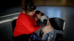 Una niña de 10 años con lesiones cutáneas presuntamente provocadas por una intoxicación Química en Quintero, el 7 de septiembre de 2018.