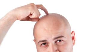 Depuis plusieurs décennies des scientifiques tentent de trouver une parade pour faire « repousser » les cheveux perdus, un rêve pour de nombreux chauves.  .