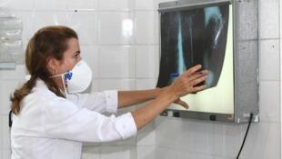 Número de casos de tuberculose é maior que o previsto