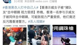 """央视新闻微博指,香港示威女子在抗争中眼球严重受损,是黑衣示威者的""""猪队友""""所为"""