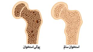 با کلیک بر روی تصویر، به توضیحات دکتر علیرضا نوری، جراح ارتوپد، گوش کنید