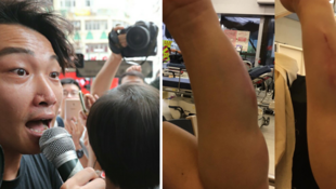 香港民间人权阵线召集人岑子杰与友人遇袭后展示伤处资料图片