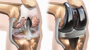 برای شنیدن توضیحات دکتر علیرضا نوری، جراح اورتوپد ساکن سوئد بر روی تصویر کلیک کنید