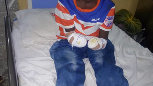 Zubairu Yusha'u lost his two arms after beign tied up for two days by his teacher in Gombe, Nigeria