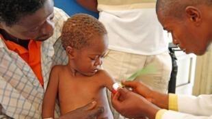 Theo FAO, nạn đói đe dọa ngày càng nhiều người hơn. Trong ảnh, một em bé ở Congo bị suy dinh dưỡng đang được các nhân viên y tế thăm khám.