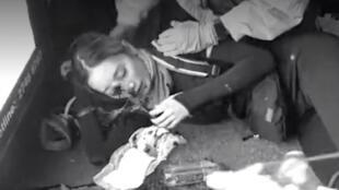 一名少女在尖沙咀遭警方發射的海綿彈打中,右眼球破碎