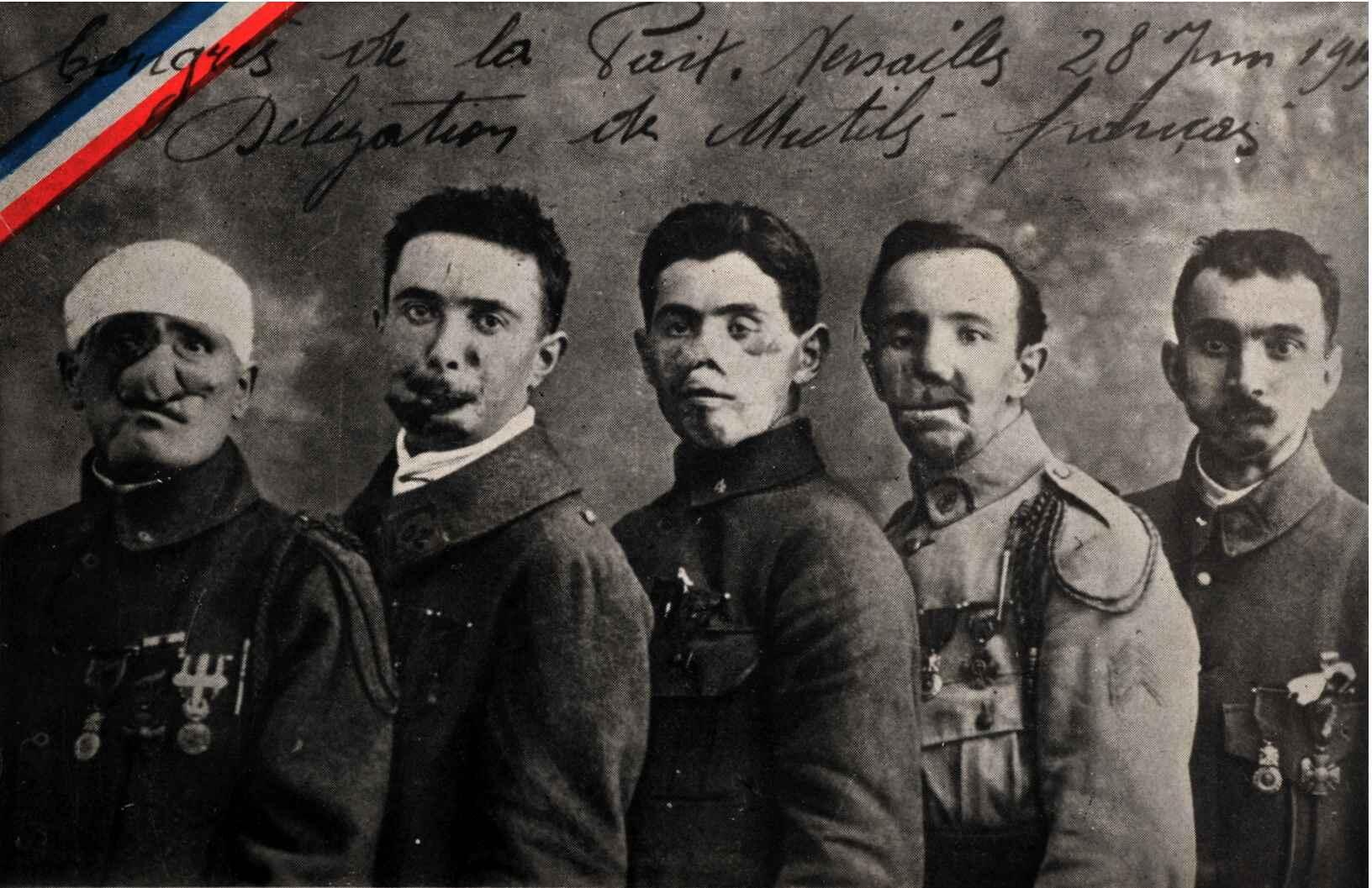 Открытка времен Первой Мировой войны: пять инвалидов, приглашенных  на подписание Версальского мирного договора.