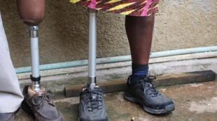 L'association Afrique en marche a appareillé environ 80 patients.