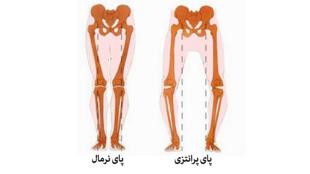 برای شنیدن توضیحات دکتر علیرضا نوری، جراح اورتوپد، در سوئد، بر روی تصویر کلیک کنید.