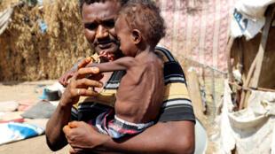 Hanaa Ahmad Ali Bahr, une petite Yéménite affamée, dans les bras de son père dans un bidonville d'Hodeïda, le 25 mars 2019.