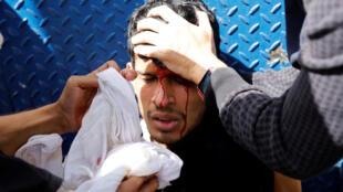 委內瑞拉反馬杜羅遊行者受傷近照