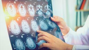 L'imagerie médicale permet un diagnostic et un suivi efficaces.